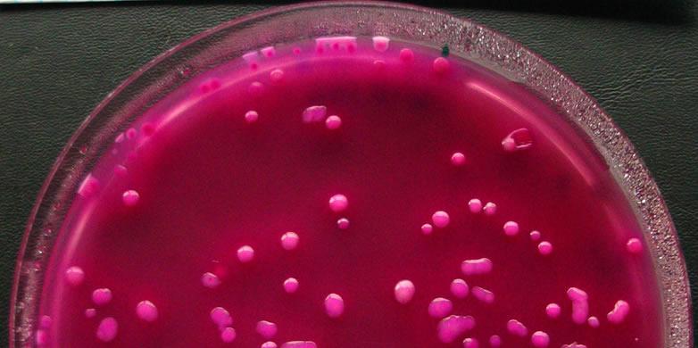 In vitro бактерии